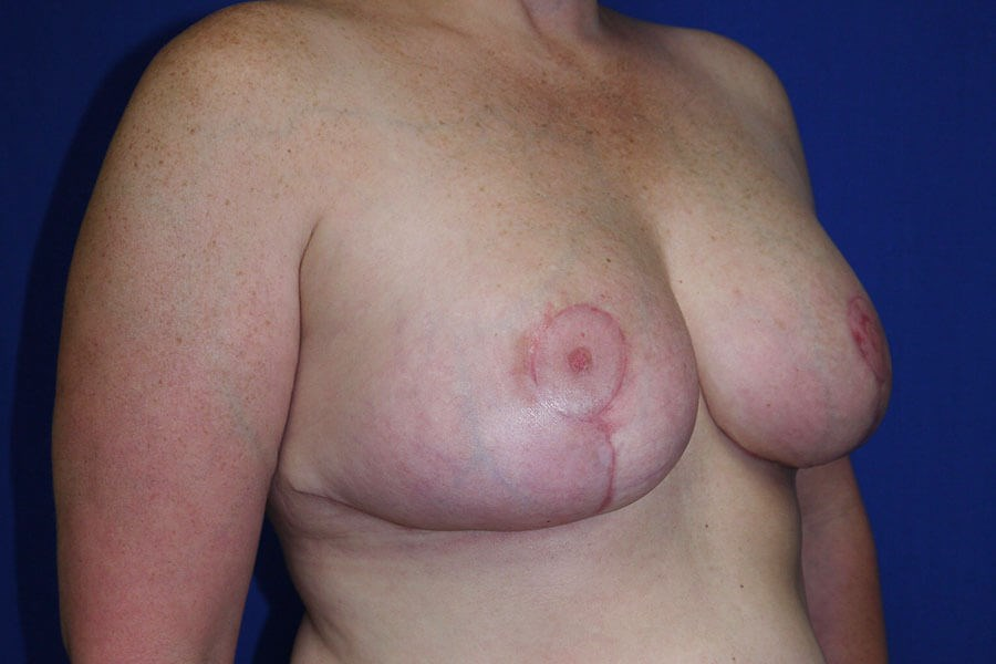 Breast Reduction After - Right Oblique View