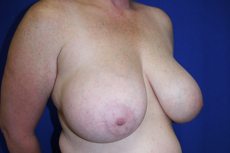 Breast Reduction Before - Right Oblique View