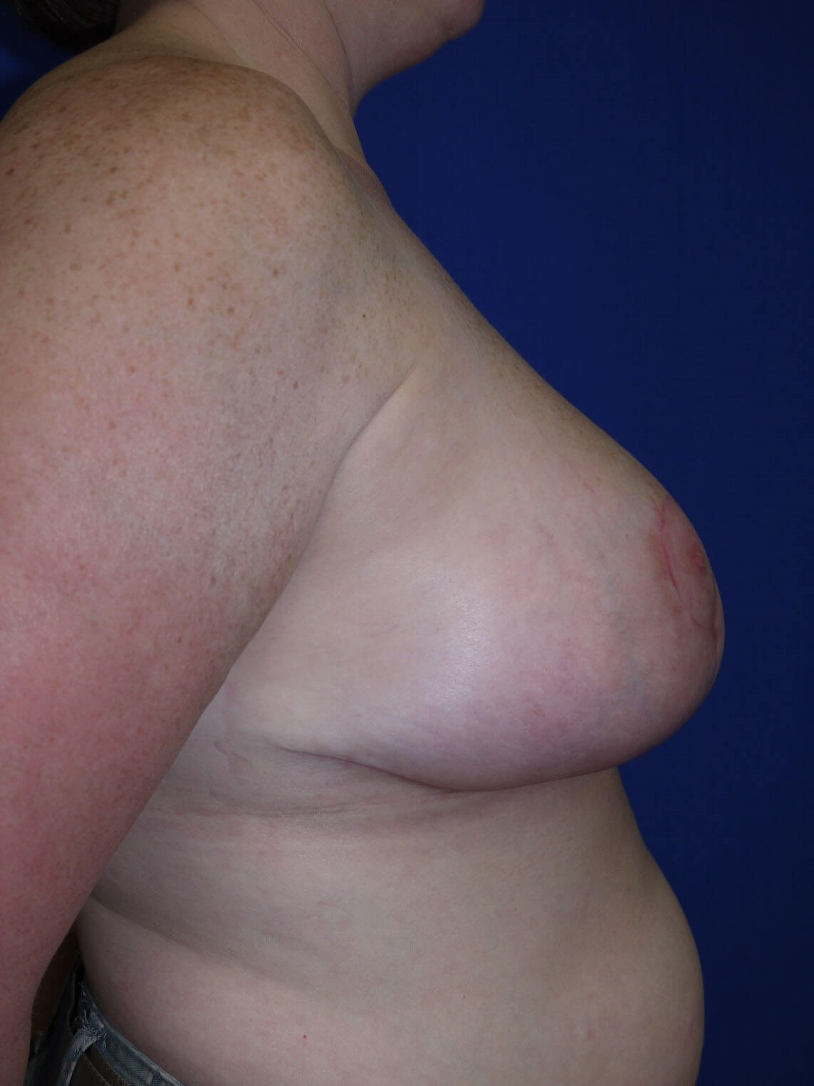 Breast Reduction After - Right Side