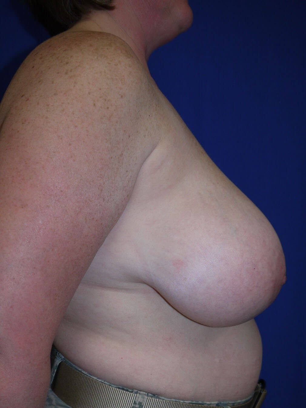 Breast Reduction Before - Right Side