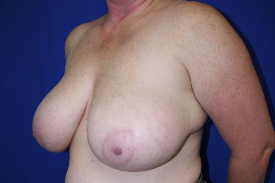 Breast Reduction Before - Left Oblique View