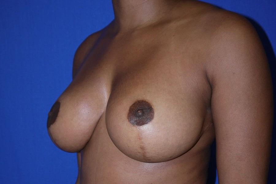 After Breast Lift - Left Oblique View - Left Oblique View