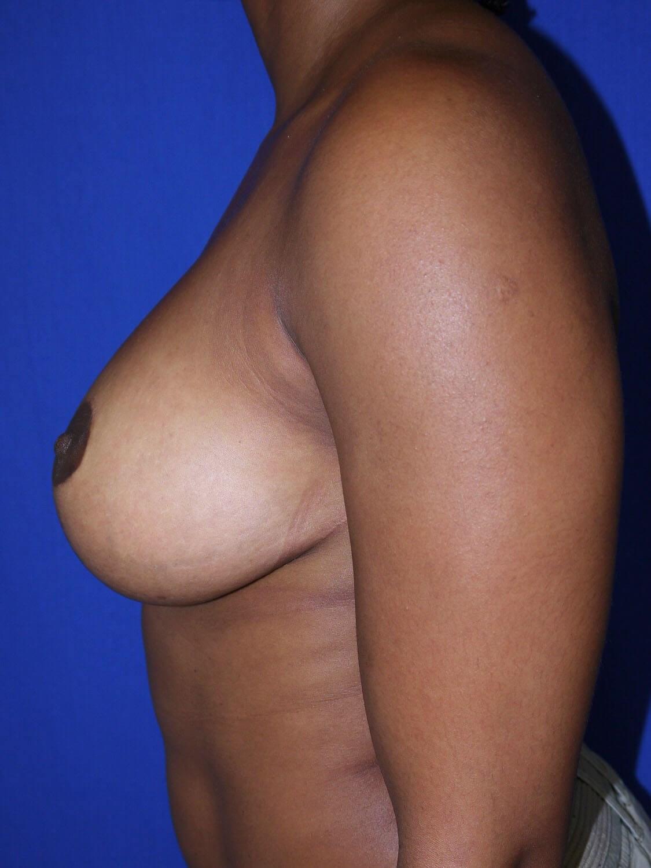After Breast Lift - Left Side - Left Side