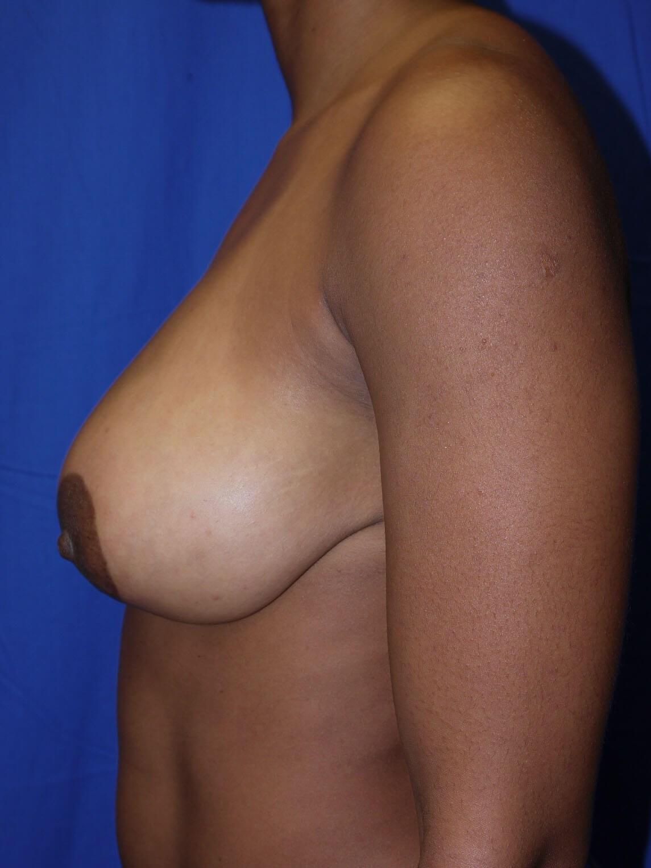 Before Breast Lift - Left Side - Left Side