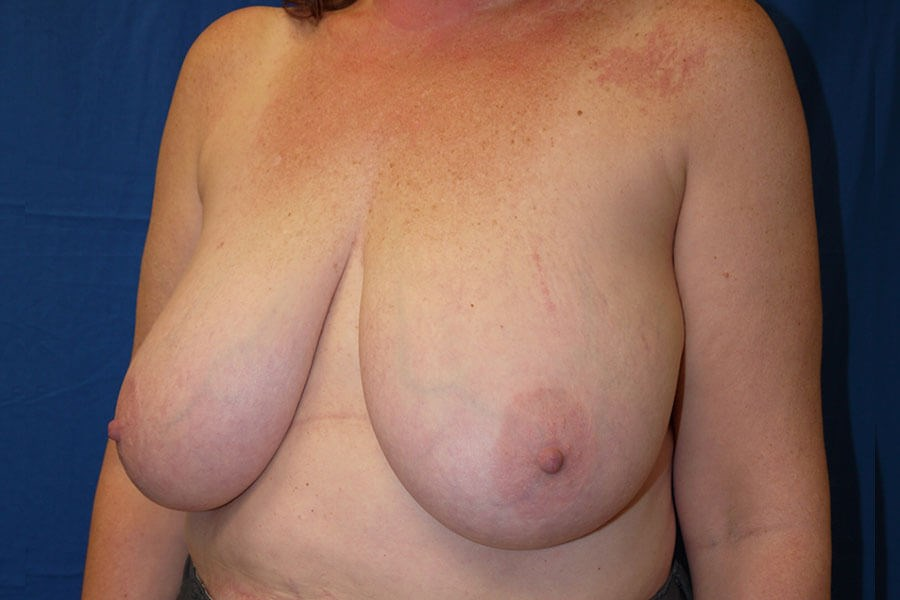 Before Breast Reduction - Left Oblique View