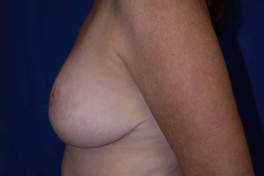 After Breast Reduction - Left Side