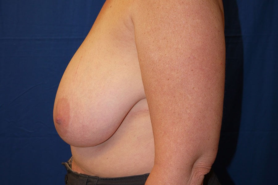 Before Breast Reduction - Left Side