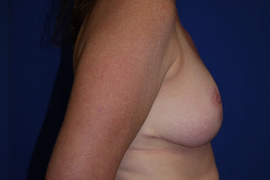 After Breast Reduction - Right Side