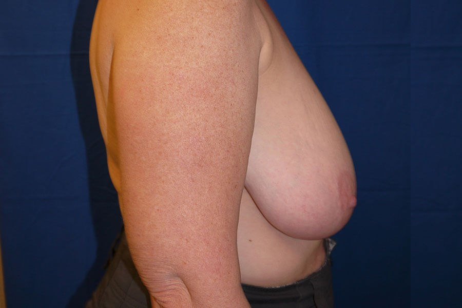 Before Breast Reduction - Right Side