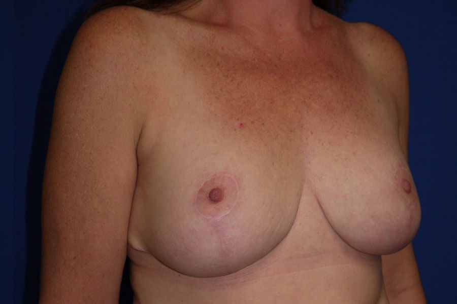 After Breast Reduction - Right Oblique View