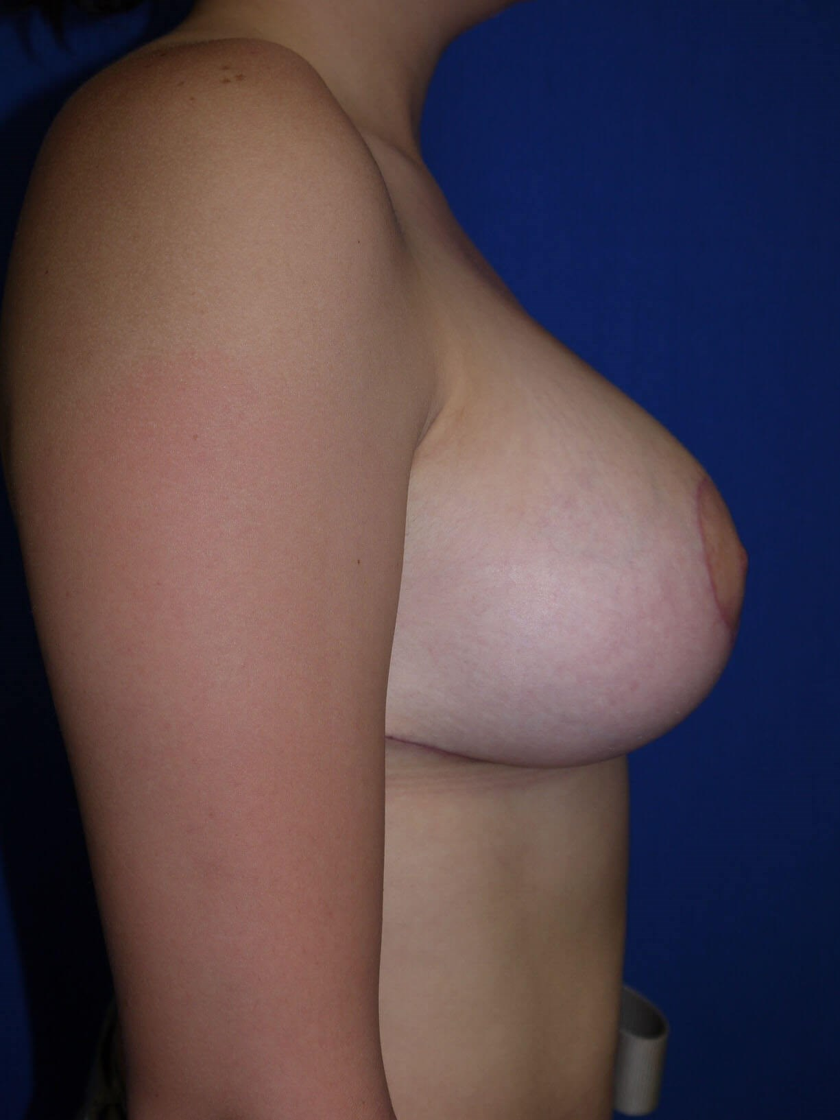 After breast lift - Right Side - Right Side