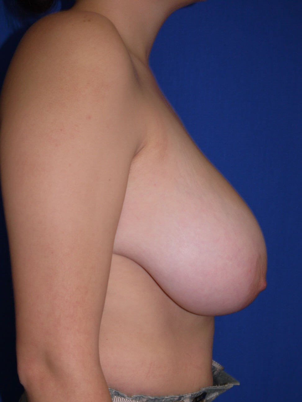 Before breast lift - Right Side - Right Side