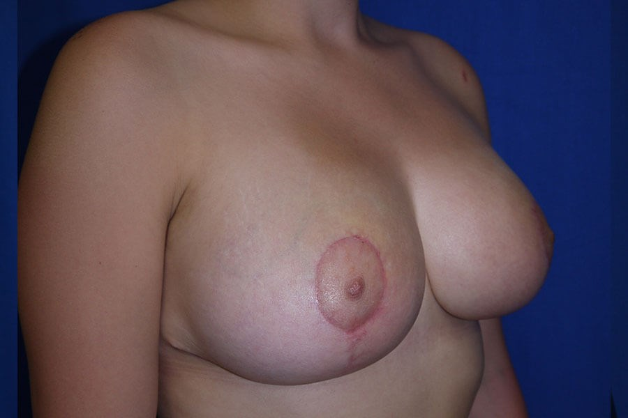 After breast lift - Right Oblique View - Right Oblique View