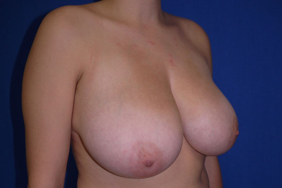 Before breast lift - Right Oblique View - Right Oblique View