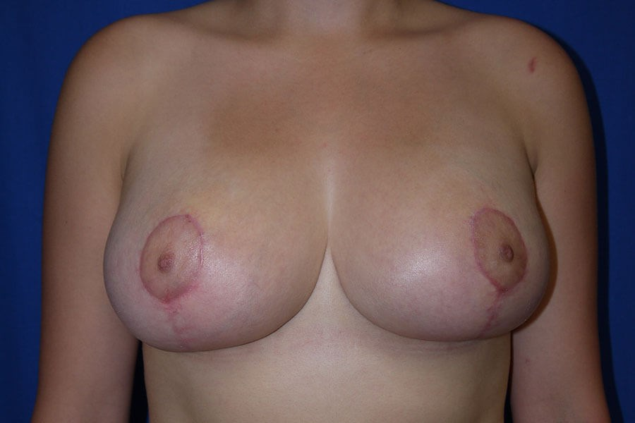 After breast lift - Front View - Front View