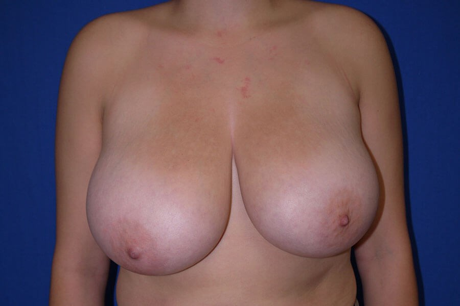 Before breast lift - Front View - Front View