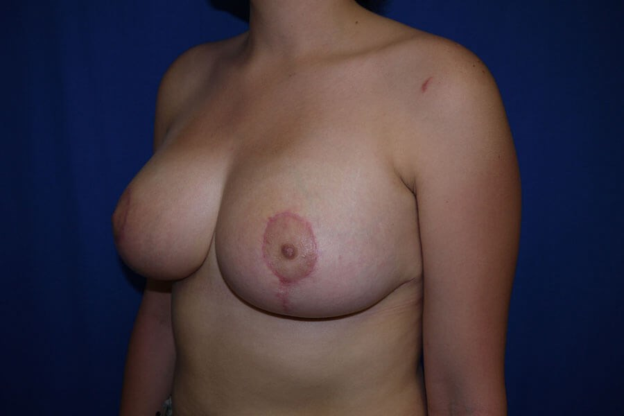 After breast lift - Left Oblique Side - Left Oblique Side