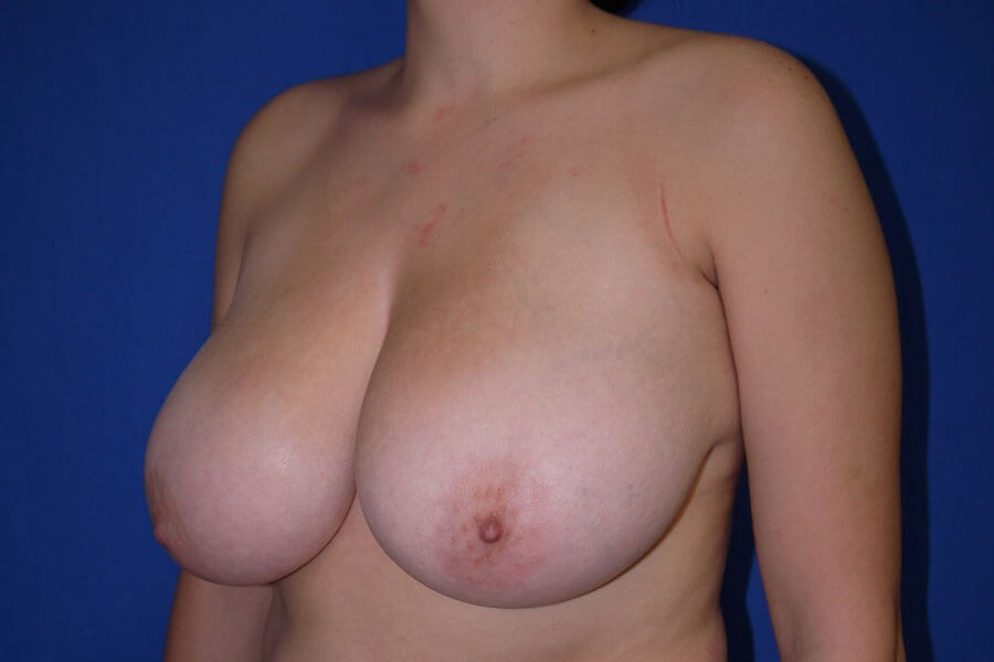 Before breast lift - Left Oblique Side - Left Oblique Side