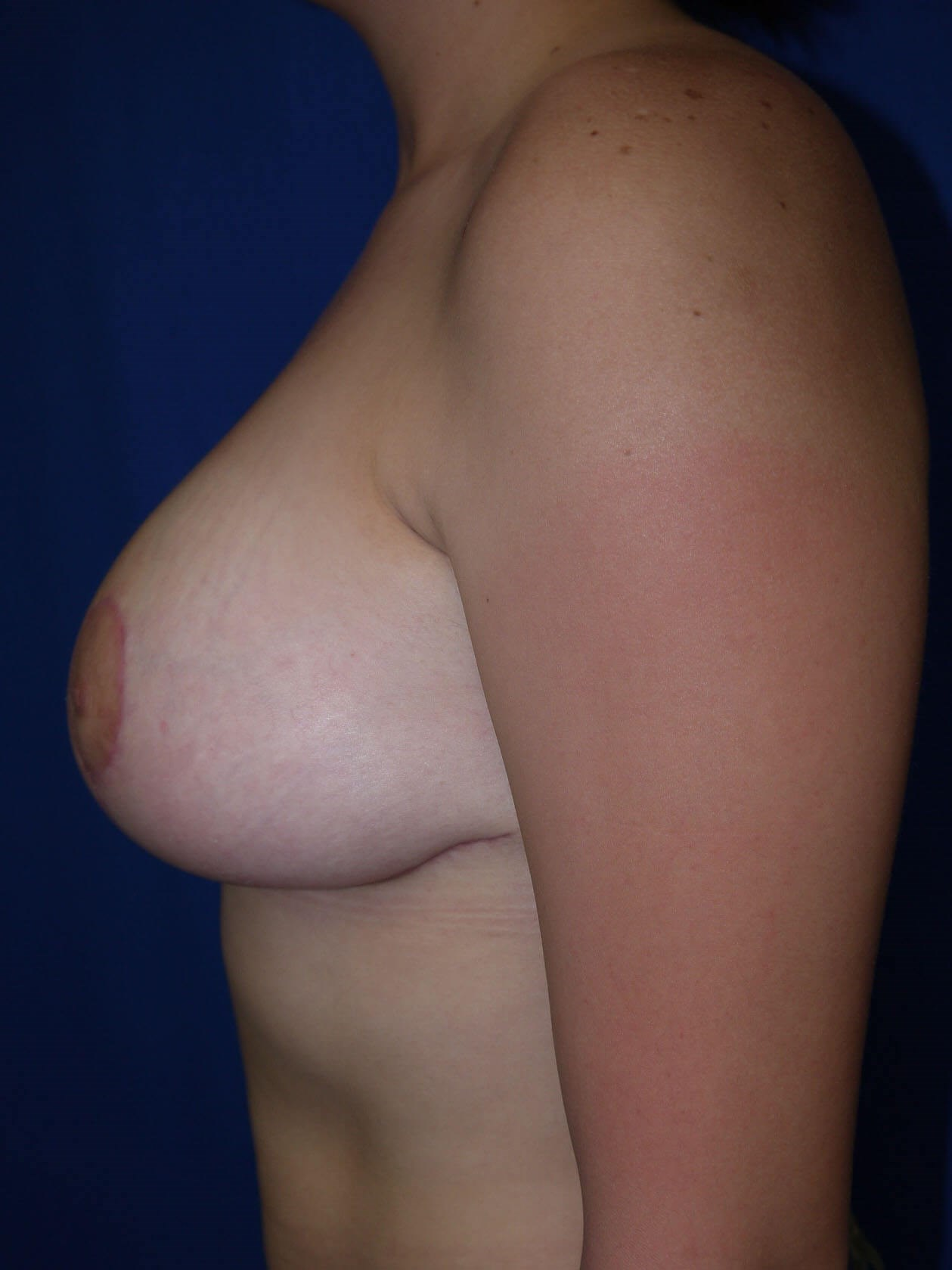 After breast lift - Left Side - Left Side