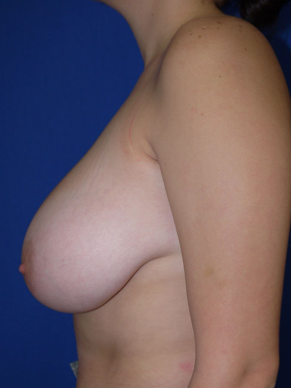 Before breast lift - Left Side - Left Side