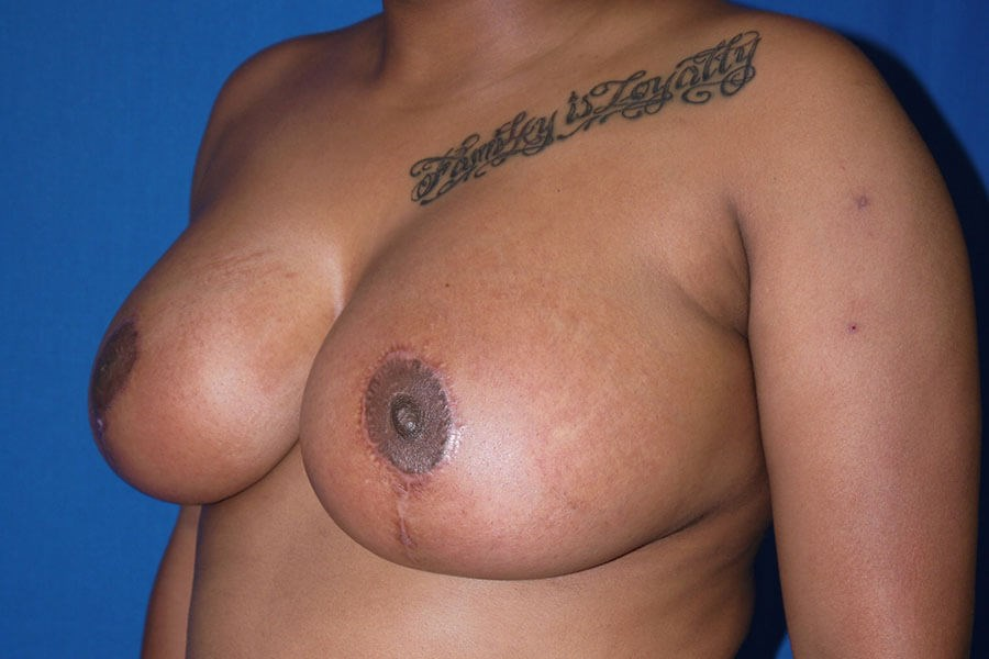 After breast reduction - Left Side - Left Oblique View