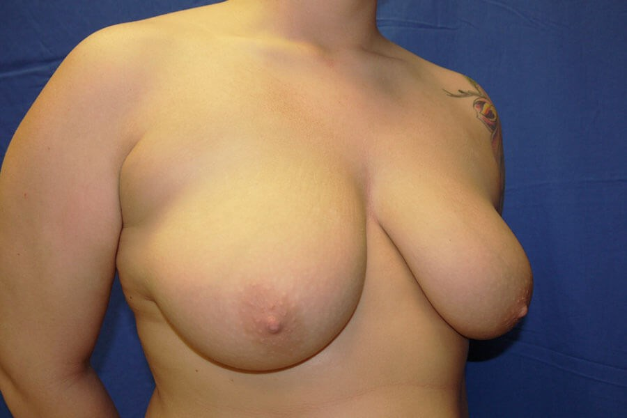 Before breast reduction - Right Oblique View - Right Oblique View