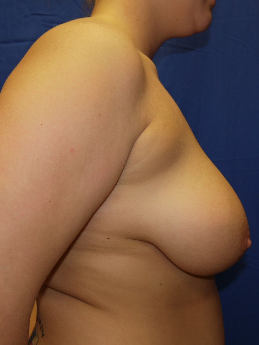 Before breast reduction - Right Side - Right Side