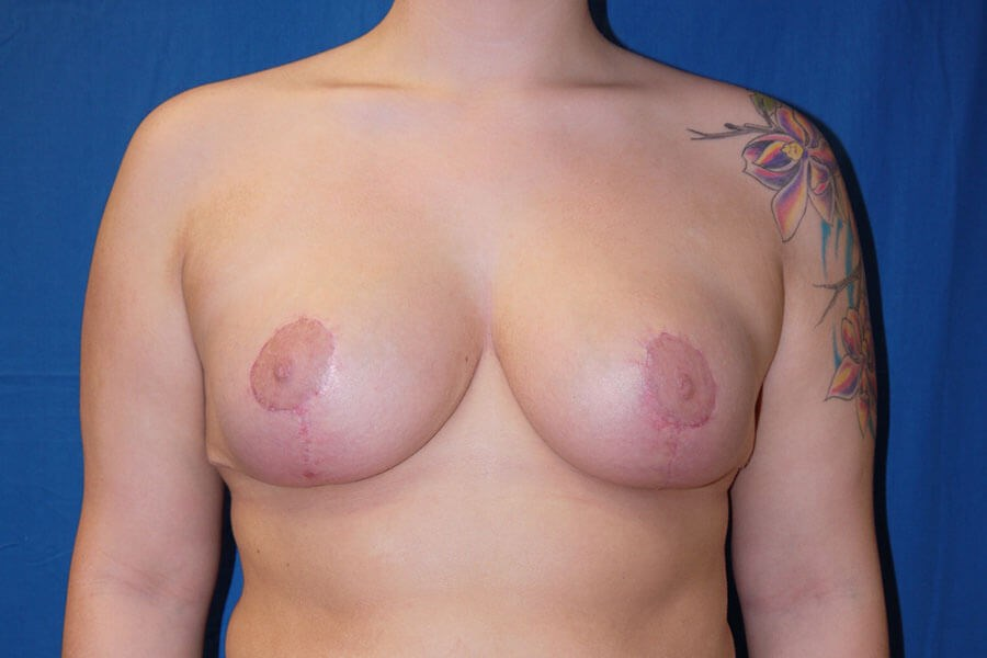 After breast reduction - Front View