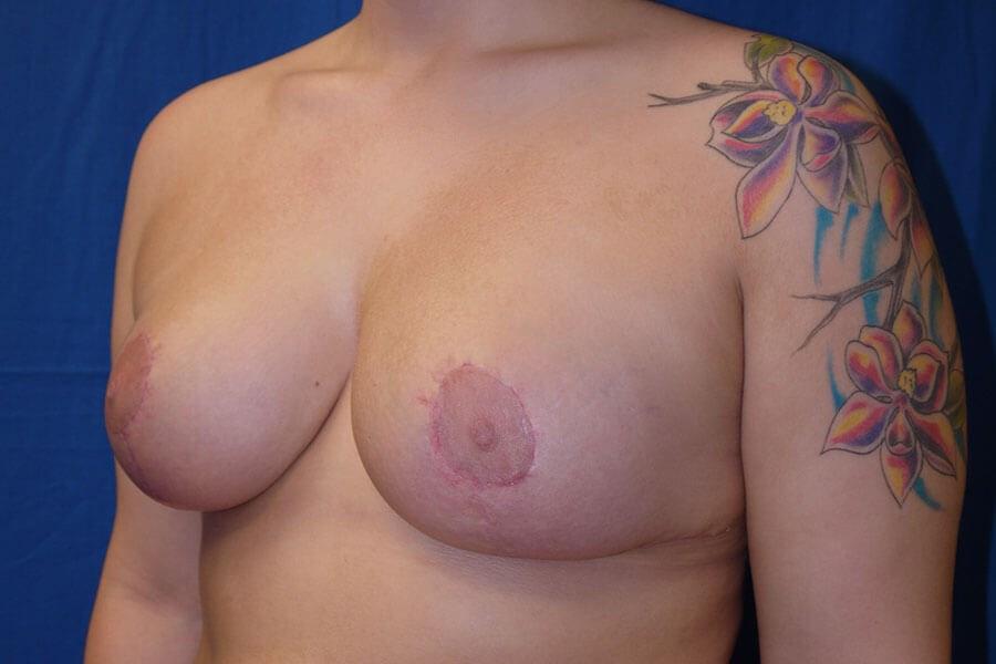 After breast reduction - Left Oblique Side - Left Oblique Side