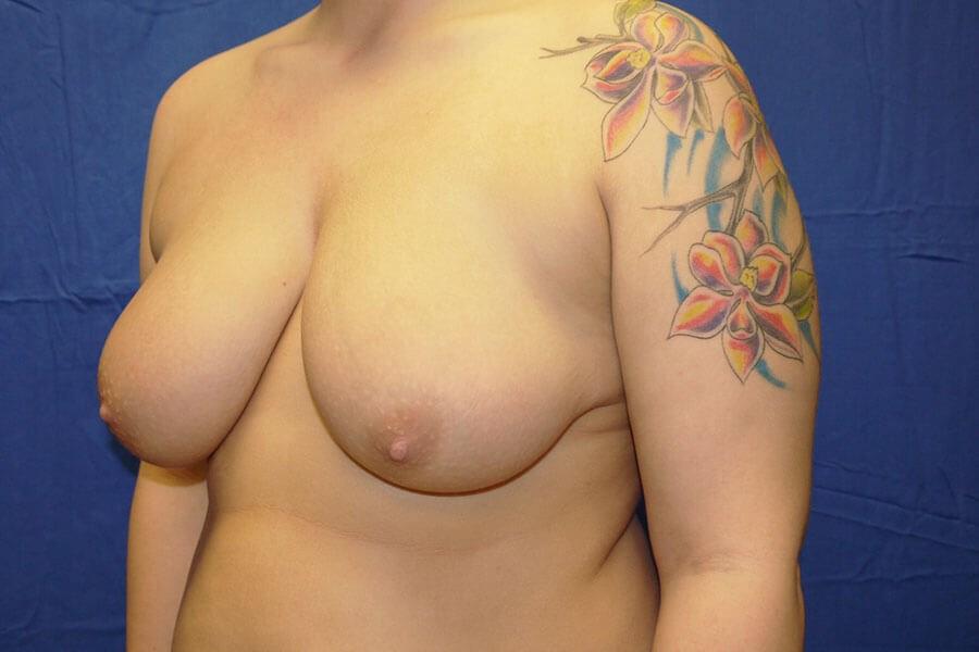 Before breast reduction - Left Oblique Side - Left Oblique Side