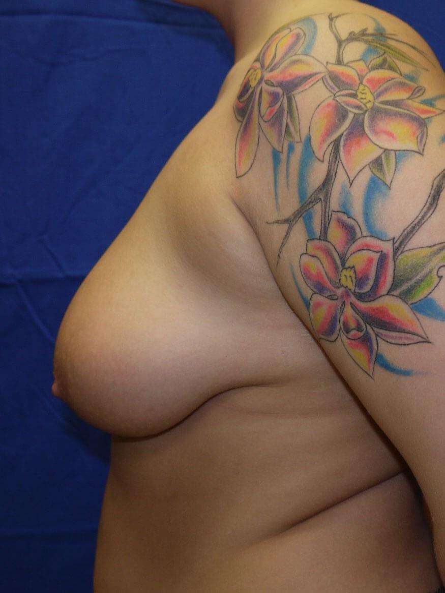 Before breast reduction - Left Side - Left Side