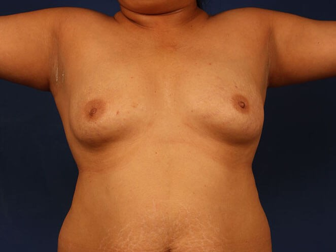 Fat Transfer to Breast Before - Front View