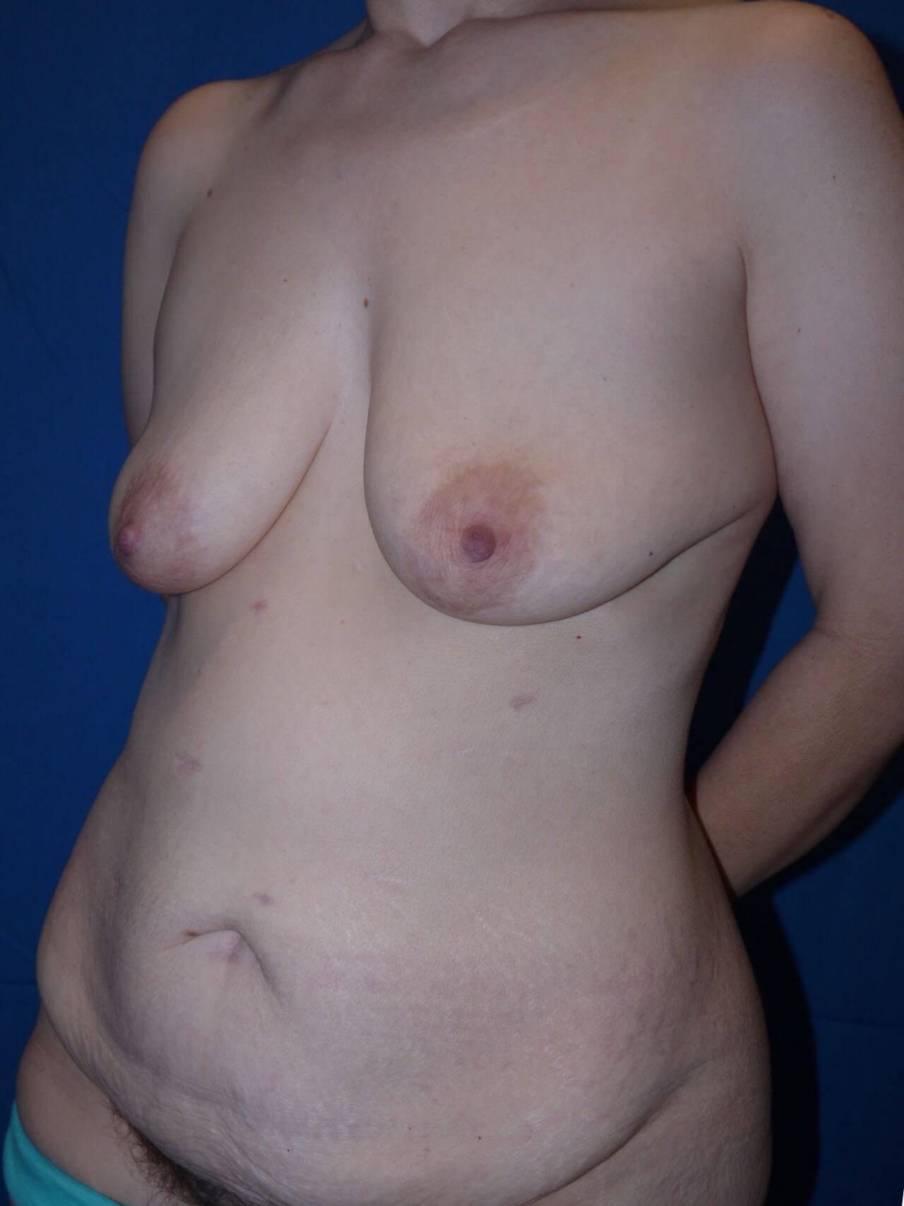 Tummy Tuck Before - Left Oblique View