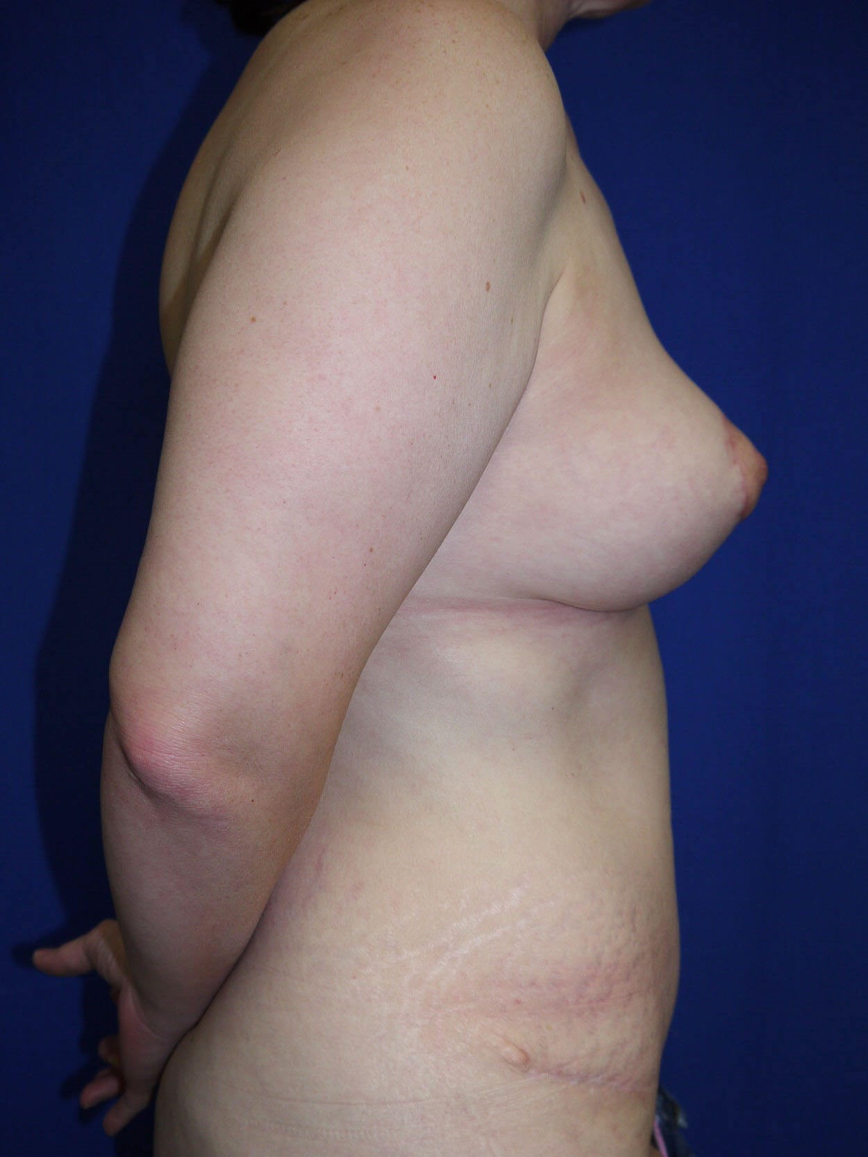 Tummy Tuck After - Right Side