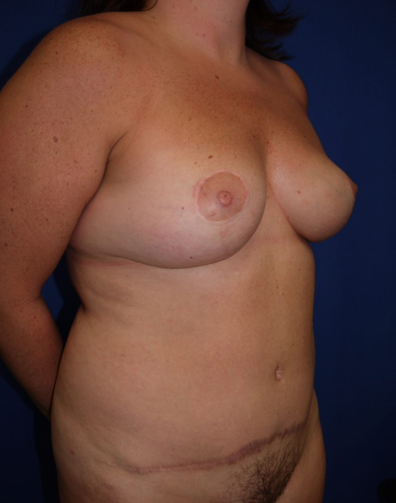 Mommy Makeover After - Right Oblique View