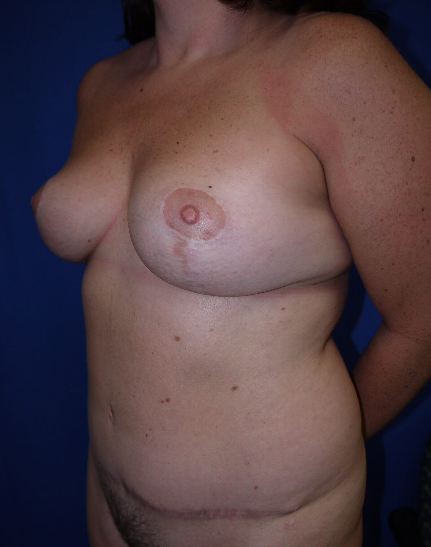 Mommy Makeover After - Left Oblique View