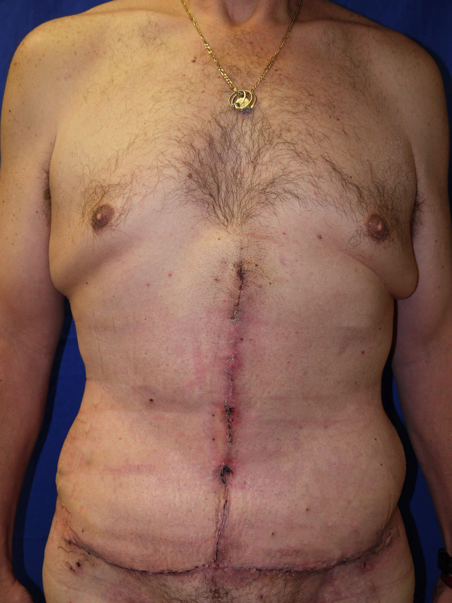 After Weight Loss Plastic Surgery  - Front View