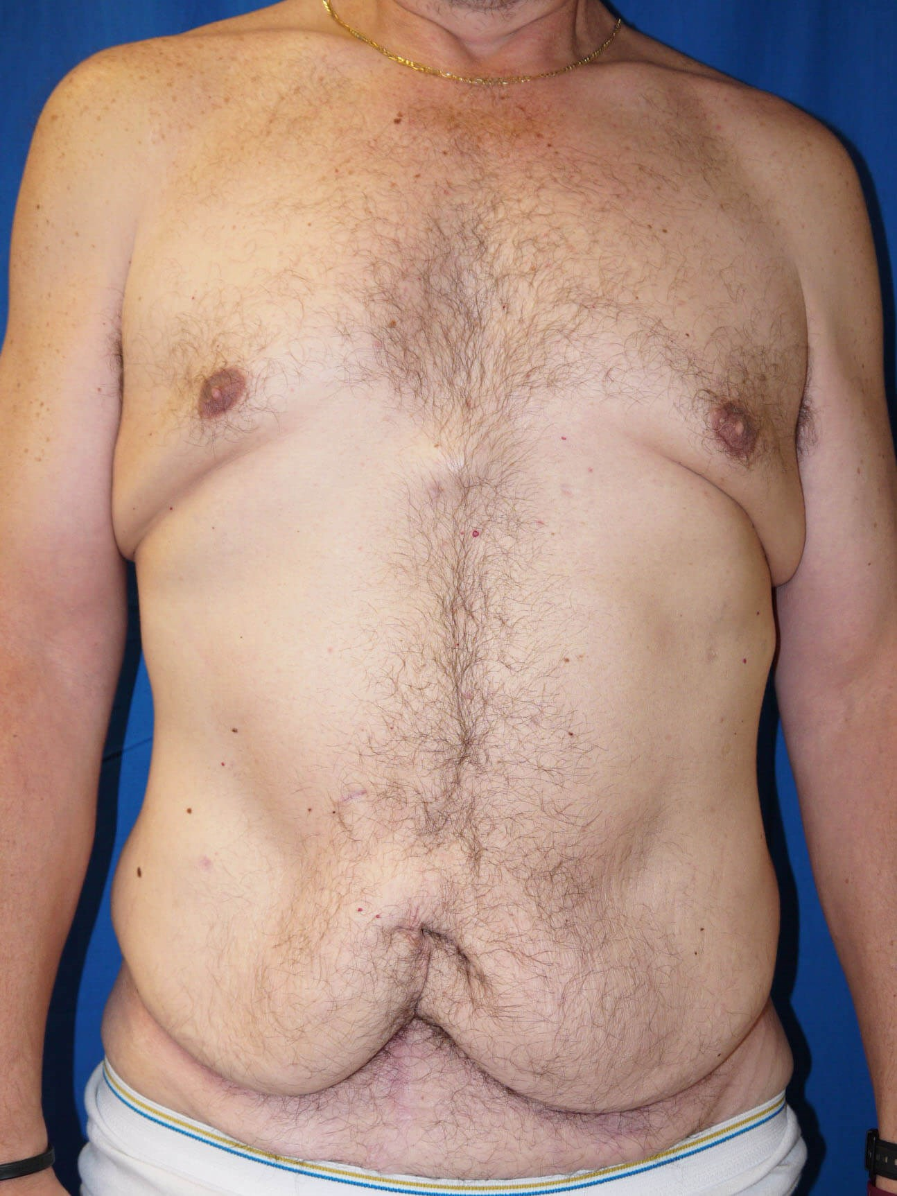 Before Weight Loss Plastic Surgery  - Front View
