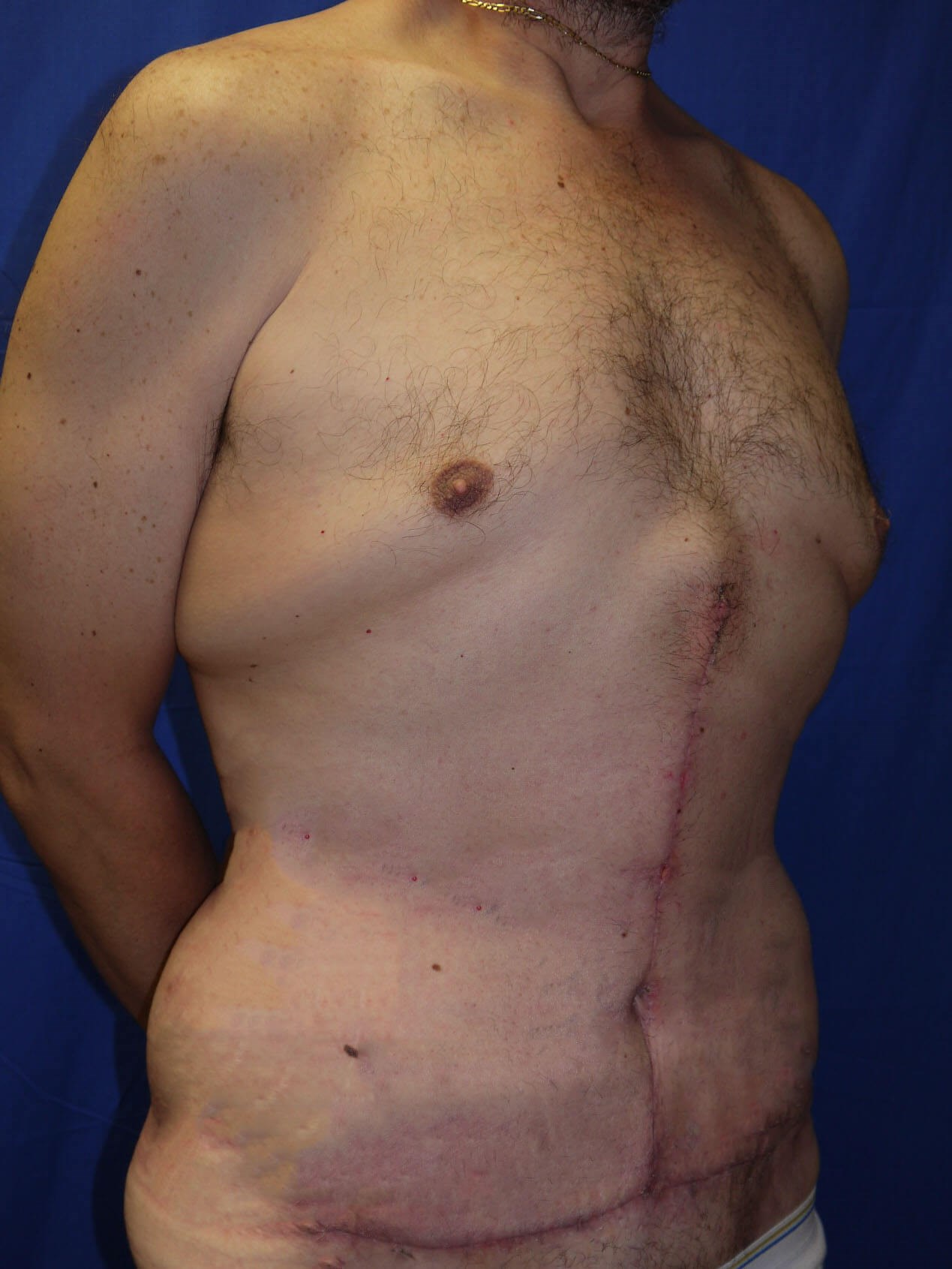 After Weight Loss Plastic Surgery - Right Oblique View - Right Oblique View