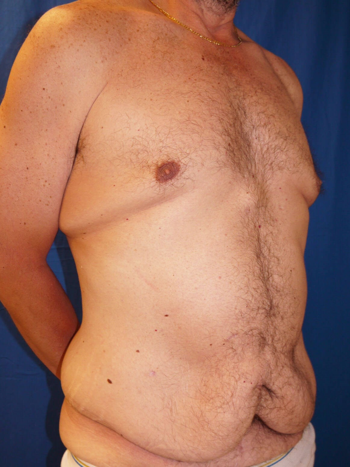 Before Weight Loss Plastic Surgery - Right Oblique View - Right Oblique View