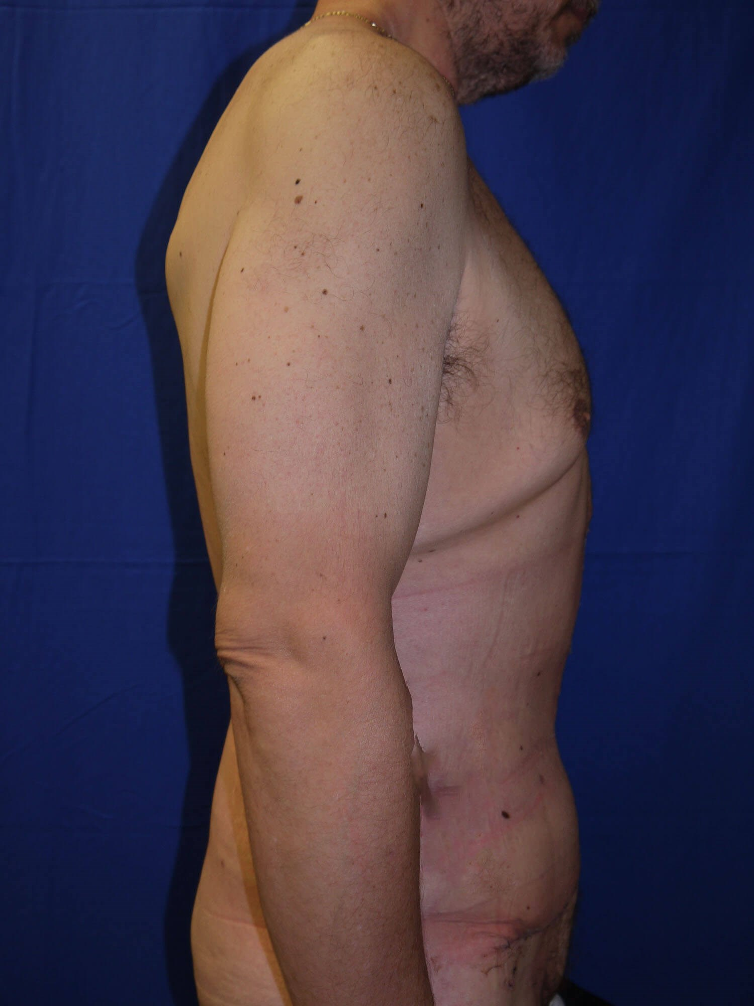 After Weight Loss Plastic Surgery - Right Side - Right Side