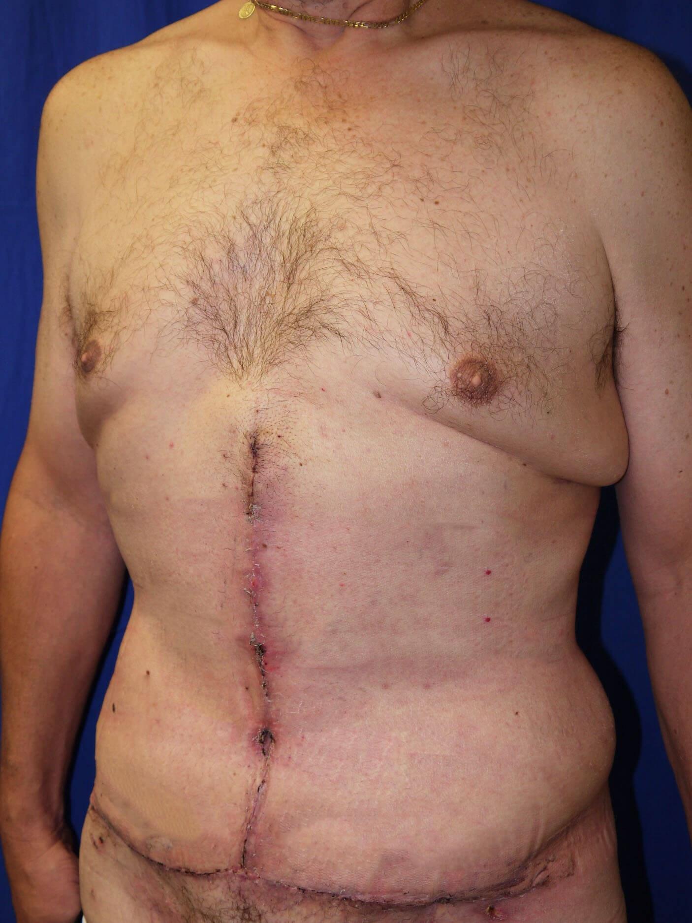 After Weight Loss Plastic Surgery - Left Oblique View - Left Oblique View
