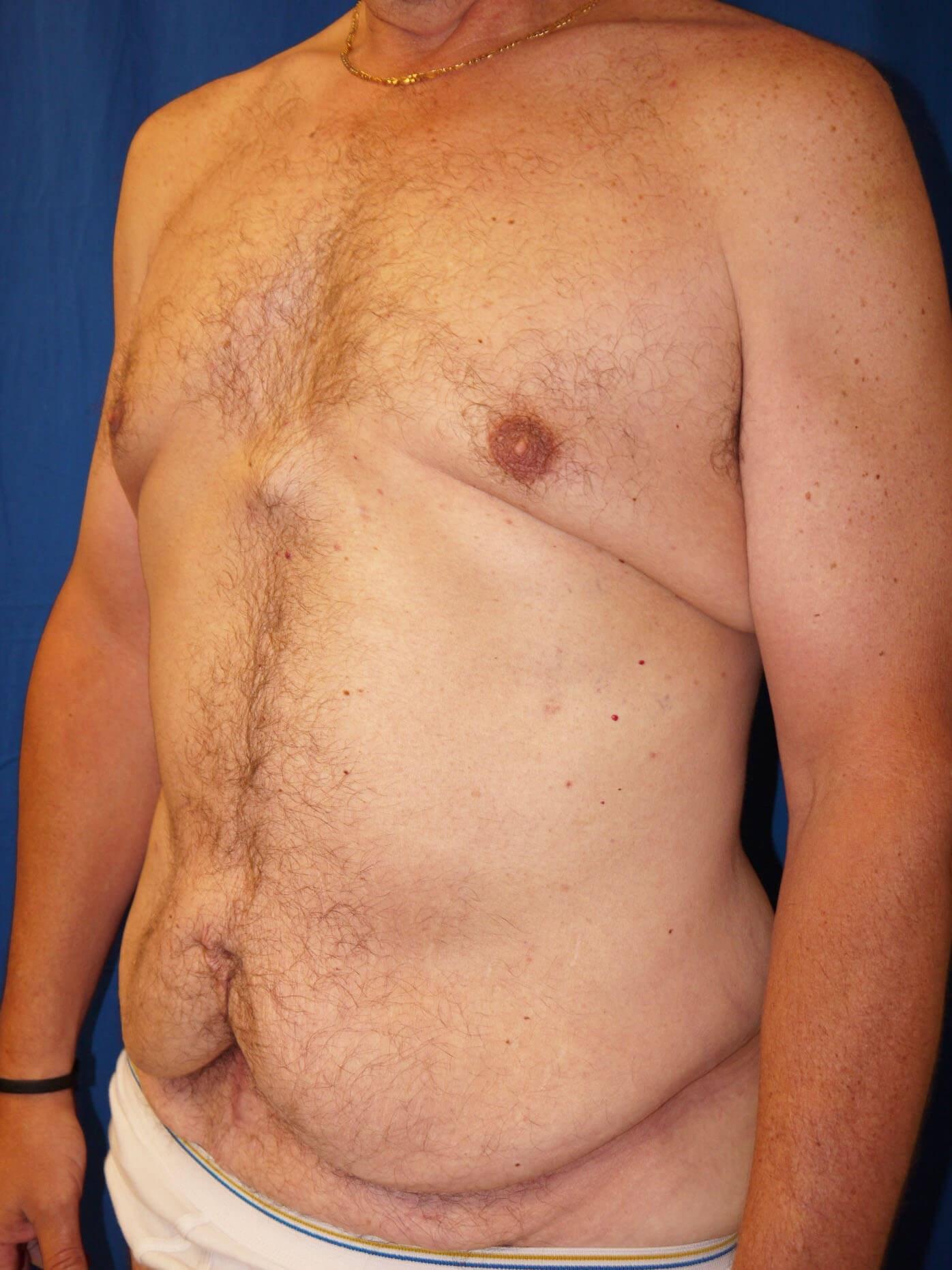 Before Weight Loss Plastic Surgery - Left Oblique View - Left Oblique View