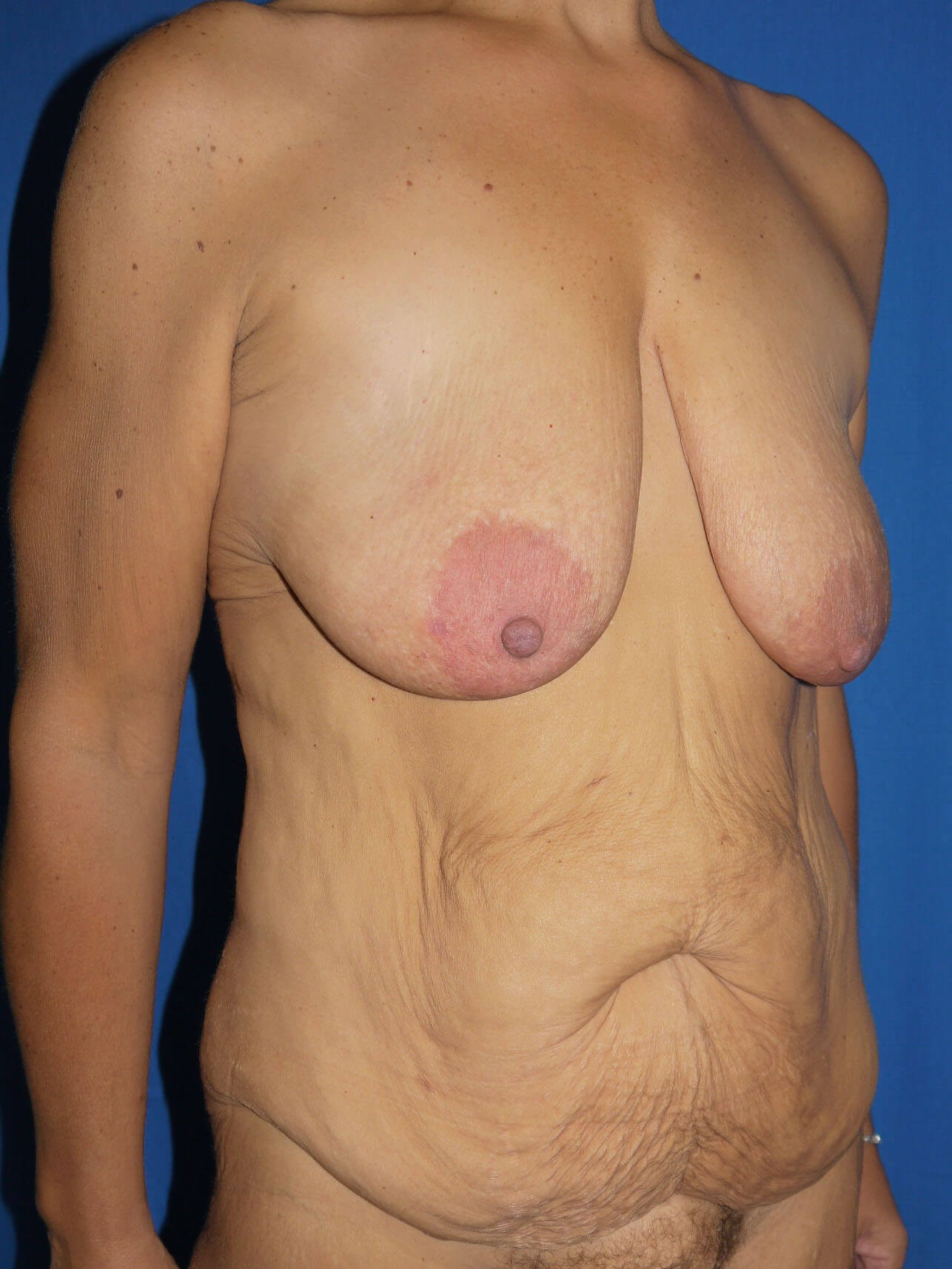 Tummy Tuck Before - Right Oblique View