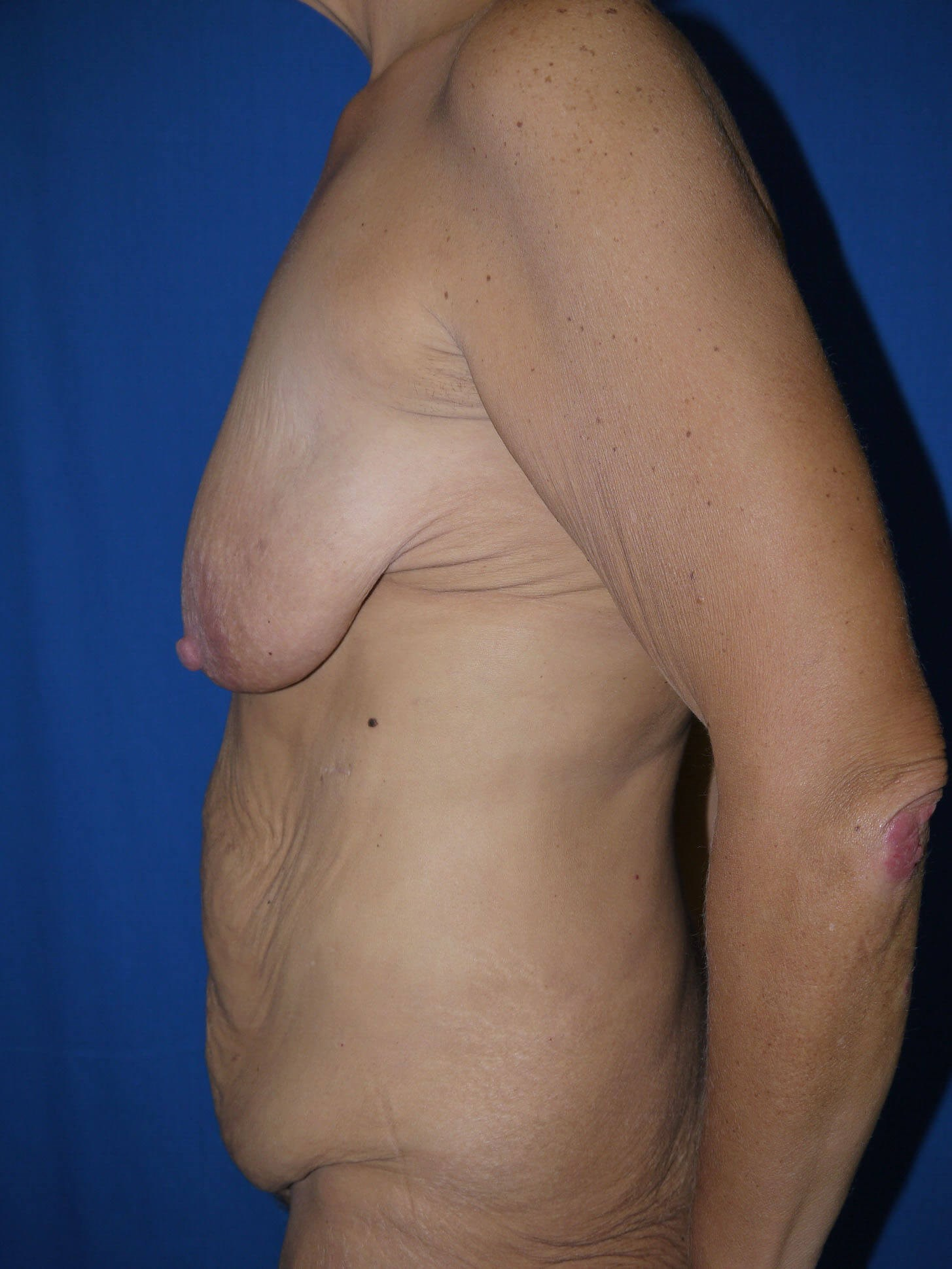 Tummy Tuck Before - Left Side