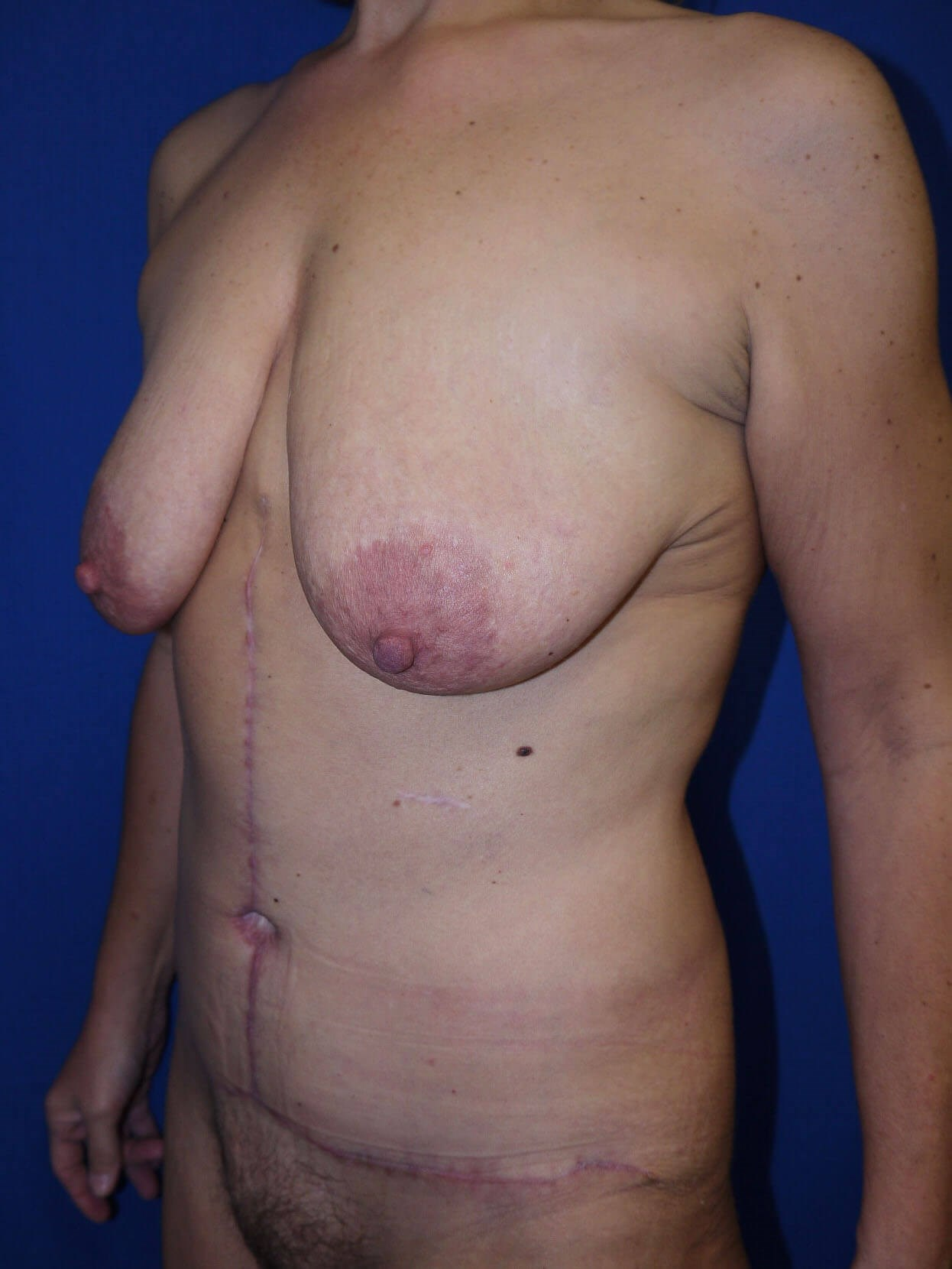 Tummy Tuck after - Left Oblique View