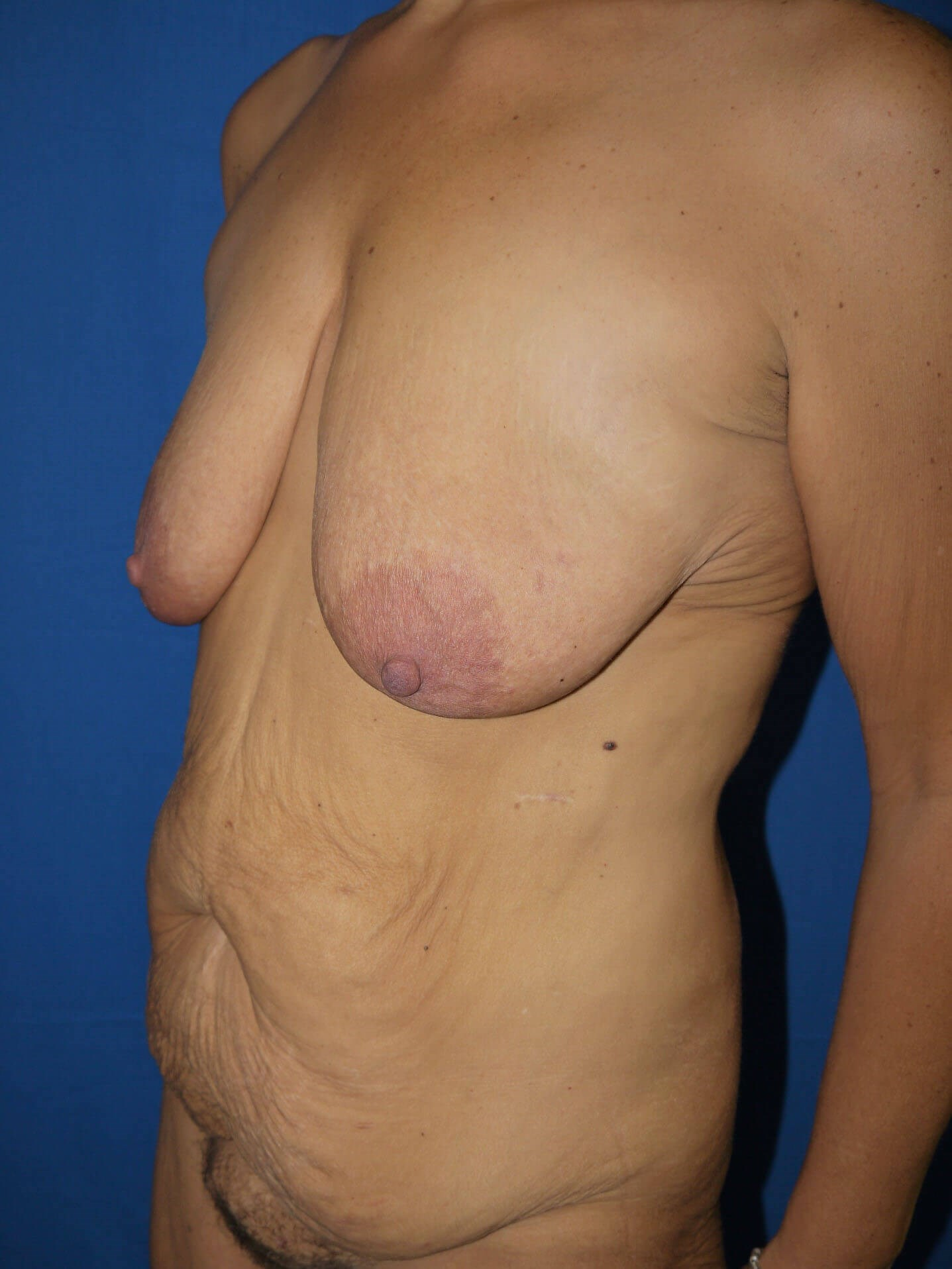 Tummy Tuck Before - Left Oblique View