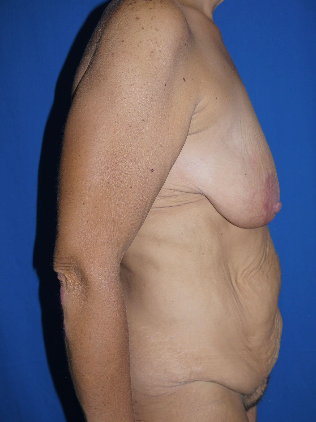 Tummy Tuck Before - Right Side