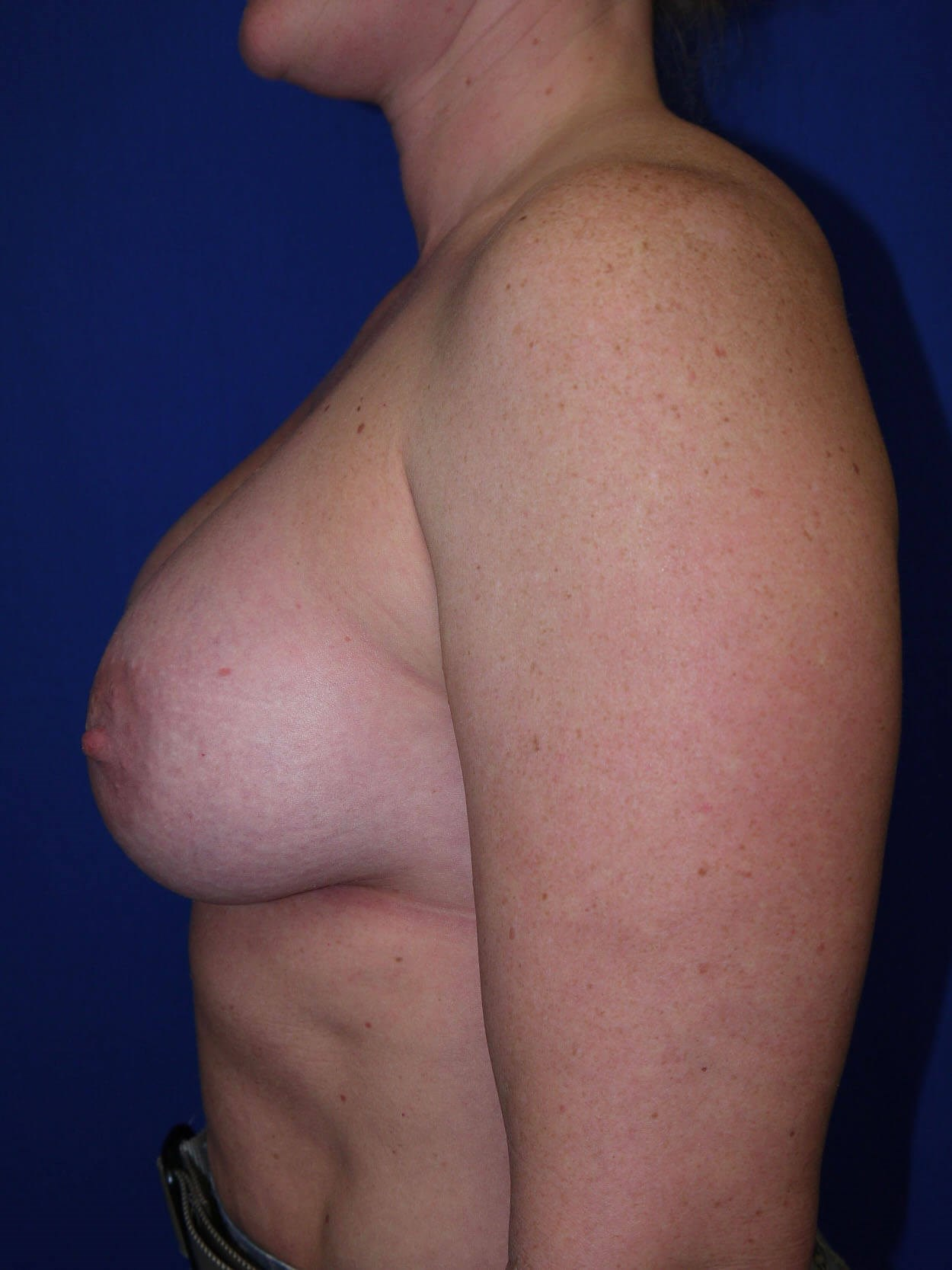 Breast Revision After - Left Side