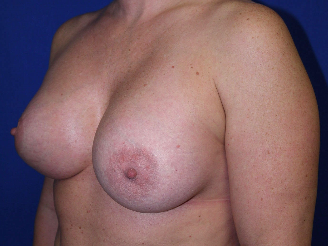 Breast Revision After - Left Oblique View
